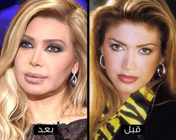 541e835c7 مجلة زهرة السوسن - صور نجمات تشوهن بعد عمليات التجميل